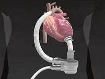 美批准新器械治疗中重度心力衰竭